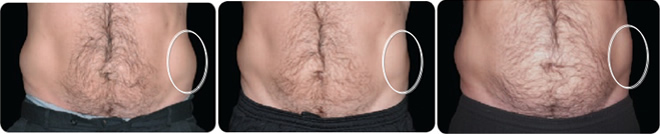 Fotostrecke - Coolsculpting